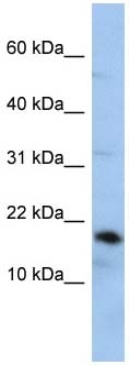 Western blot - Anti-LCN1 antibody (ab87786)
