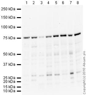 Western blot - Anti-Coilin antibody [IH10] (ab87913)