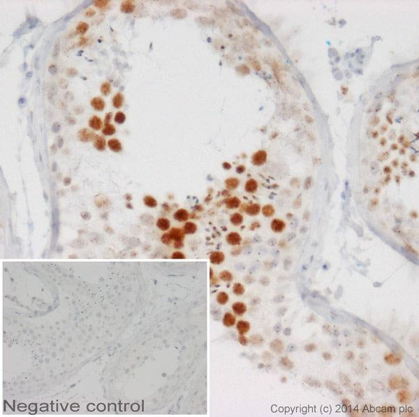 Immunohistochemistry (Formalin/PFA-fixed paraffin-embedded sections) - Anti-Coilin antibody [IH10] (ab87913)