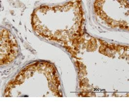 Immunohistochemistry (Formalin/PFA-fixed paraffin-embedded sections) - Anti-CITED1 antibody (ab87978)