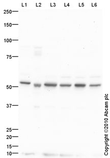 Western blot - Anti-Choline kinase alpha antibody (ab88053)