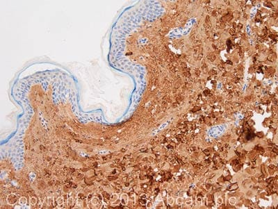 Immunohistochemistry (Formalin/PFA-fixed paraffin-embedded sections) - Anti-Collagen I antibody [3G3] (ab88147)