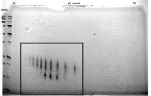 SDS-PAGE - Recombinant human GM-CSF protein (ab88382)