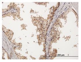 Immunohistochemistry (Formalin/PFA-fixed paraffin-embedded sections) - Anti-Nectin 2 antibody (ab88389)