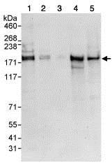 Western blot - Anti-SIK3 antibody (ab88495)