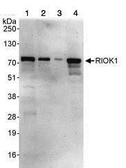 Western blot - Anti-RIOK1/RIO1 antibody (ab88496)