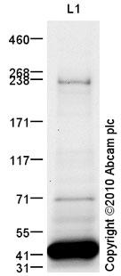 Western blot - Anti-TDRD6 antibody (ab88570)