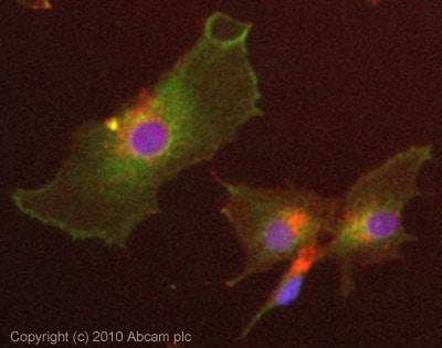 Immunocytochemistry/ Immunofluorescence - Anti-MMP14 antibody (ab88618)