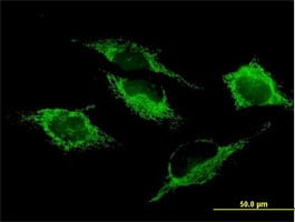 Immunocytochemistry/ Immunofluorescence - Anti-SHMT2/SHMT antibody (ab88664)
