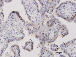 Immunohistochemistry (Formalin/PFA-fixed paraffin-embedded sections) - Anti-ORC6L antibody (ab88686)