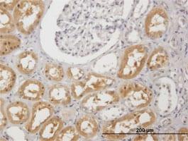 Immunohistochemistry (Formalin/PFA-fixed paraffin-embedded sections) - Anti-PAH antibody (ab88740)