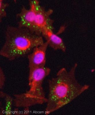 Immunocytochemistry/ Immunofluorescence - Anti-NF2 / Merlin antibody [AF1G4] (ab88957)