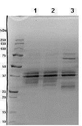 SDS-PAGE - Recombinant human IL-12 protein (ab89013)