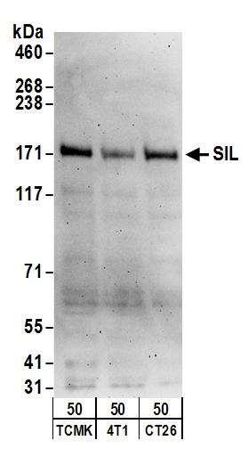 Western blot - Anti-STIL/SIL antibody (ab89314)