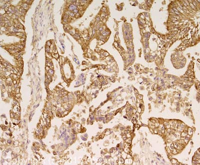 Immunohistochemistry (Formalin/PFA-fixed paraffin-embedded sections) - Anti-MUC1 antibody [BC-2] (ab89492)