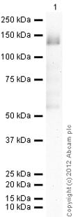 Western blot - Recombinant human TTK/Mps1 protein (ab89589)