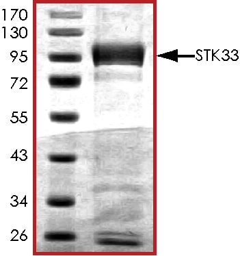 SDS-PAGE - Recombinant human STK33 protein (ab89591)
