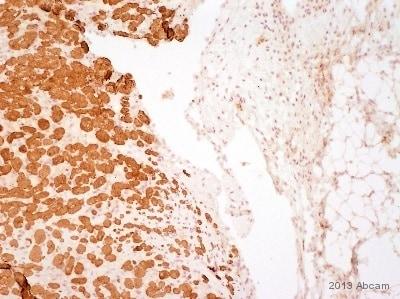 Immunohistochemistry (Formalin/PFA-fixed paraffin-embedded sections) - Anti-Myosin Light Chain 2 antibody [AT3B2] (ab89594)