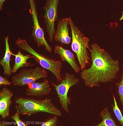 Immunocytochemistry/ Immunofluorescence - Anti-MAP4 antibody (ab89650)