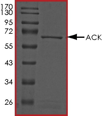 SDS-PAGE - Recombinant human ACK1 protein (ab89747)