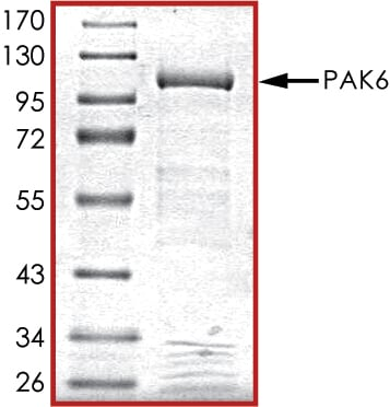 SDS-PAGE - Recombinant human PAK6 protein (ab89757)
