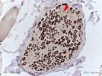 Immunohistochemistry (Formalin/PFA-fixed paraffin-embedded sections) - Anti-MAG/GMA antibody (ab89780)