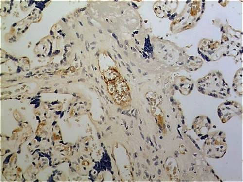 Immunohistochemistry (Formalin/PFA-fixed paraffin-embedded sections) - Anti-NKG2D antibody [MM0489-10R27] (ab89807)