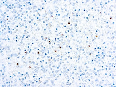 Immunohistochemistry (Formalin/PFA-fixed paraffin-embedded sections) - Anti-Perforin antibody [5B10] (ab89821)