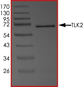 SDS-PAGE - Recombinant human TLK2 protein (ab89855)