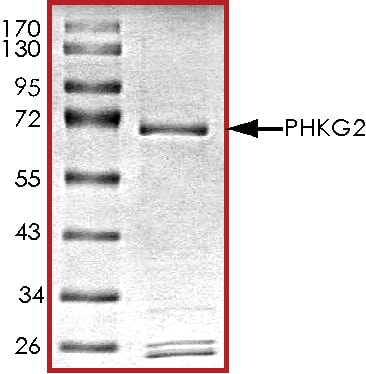 SDS-PAGE - Recombinant human PHKG2 protein (ab89857)