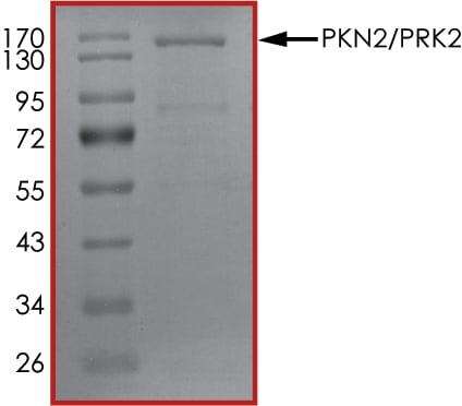 SDS-PAGE - Recombinant human PKN2 protein (ab89860)
