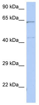 Western blot - Anti-EME1 antibody (ab89969)