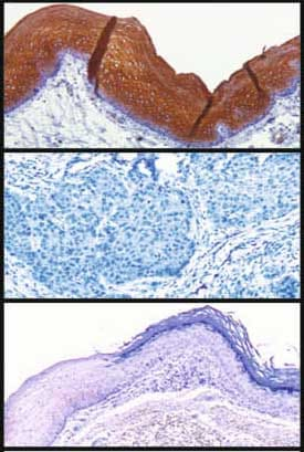Immunohistochemistry (Formalin/PFA-fixed paraffin-embedded sections) - Anti-Cytokeratin 4 antibody [6B10] (ab9004)