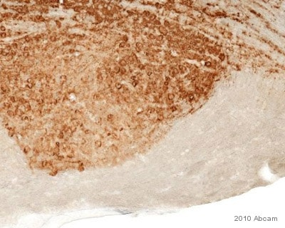 Immunohistochemistry (Formalin/PFA-fixed paraffin-embedded sections) - Anti-NCAM1 antibody [RNL-1] (ab9018)
