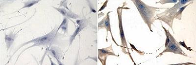Immunocytochemistry/ Immunofluorescence - Anti-NCAM1 antibody [RNL-1] (ab9018)