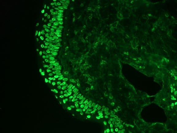 Immunohistochemistry (Frozen sections) - Anti-Cytokeratin 7 antibody [RCK105] (ab9021)