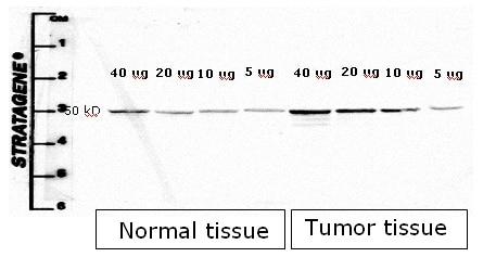 Western blot - Anti-Cytokeratin 8 antibody [M20] (ab9023)