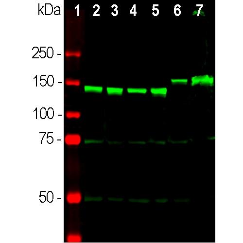 Western blot - Anti-160 kD Neurofilament Medium antibody - Neuronal Marker (ab9034)