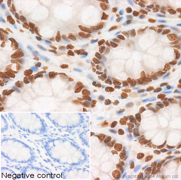 Immunohistochemistry (Formalin/PFA-fixed paraffin-embedded sections) - Anti-Histone H3 (di methyl K36) antibody - ChIP Grade (ab9049)