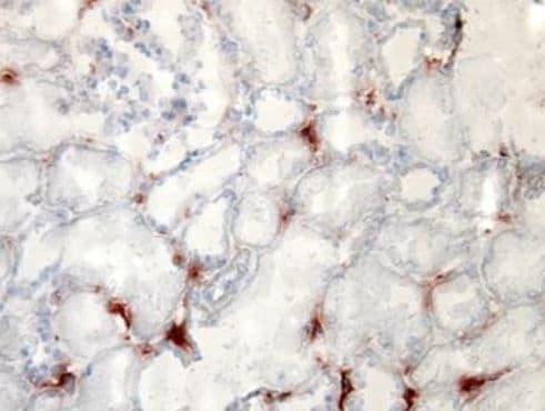 Immunohistochemistry (Frozen sections) - Biotin Anti-TLR2 antibody [TL2.1] (ab9101)