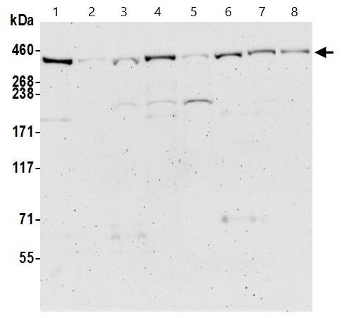 Western blot - Anti-BRCA2 antibody (ab9143)