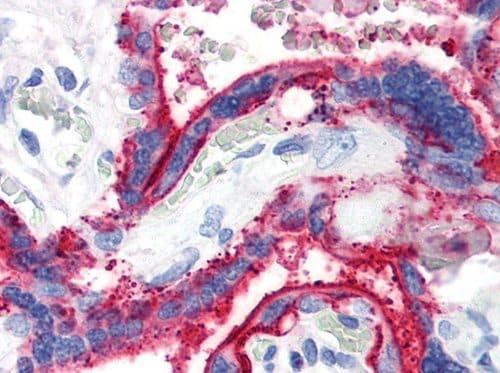 Immunohistochemistry paraffin embedded sections - Anti-CD59 antibody [MEM-43] (ab9182)