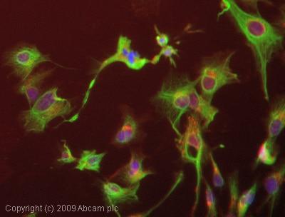 Immunocytochemistry/ Immunofluorescence - Anti-Cytokeratin 14 antibody [RCK107] (ab9220)