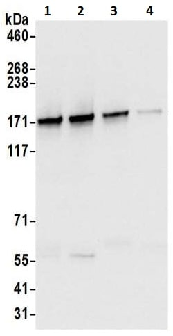 Immunoprecipitation - Anti-SMC1A antibody - ChIP Grade (ab9262)