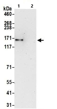 Immunoprecipitation - Anti-SMC1A antibody (ab9262)