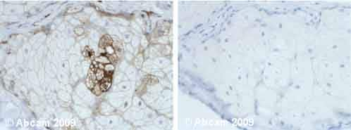 Immunohistochemistry (Formalin/PFA-fixed paraffin-embedded sections) - Anti-AACT antibody (ab9374)