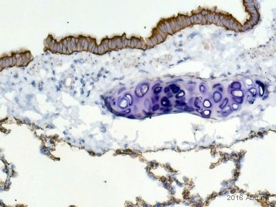 Immunohistochemistry (Formalin/PFA-fixed paraffin-embedded sections) - Anti-wide spectrum Cytokeratin antibody (ab9377)