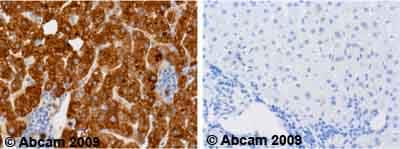 Immunohistochemistry (Formalin/PFA-fixed paraffin-embedded sections) - Anti-alpha 1 Antitrypsin antibody [B9] (ab9399)