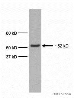 Western blot - Anti-alpha 1 Antitrypsin antibody [G11] (ab9400)