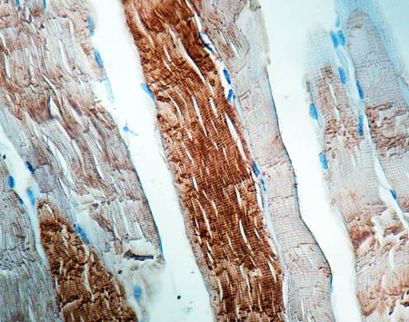 Immunohistochemistry (Formalin/PFA-fixed paraffin-embedded sections) - Anti-Sarcomeric Alpha Actinin antibody [EA-53] (ab9465)